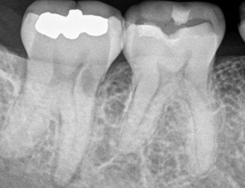 You've Been Told You Need a Root Canal: What's Next?